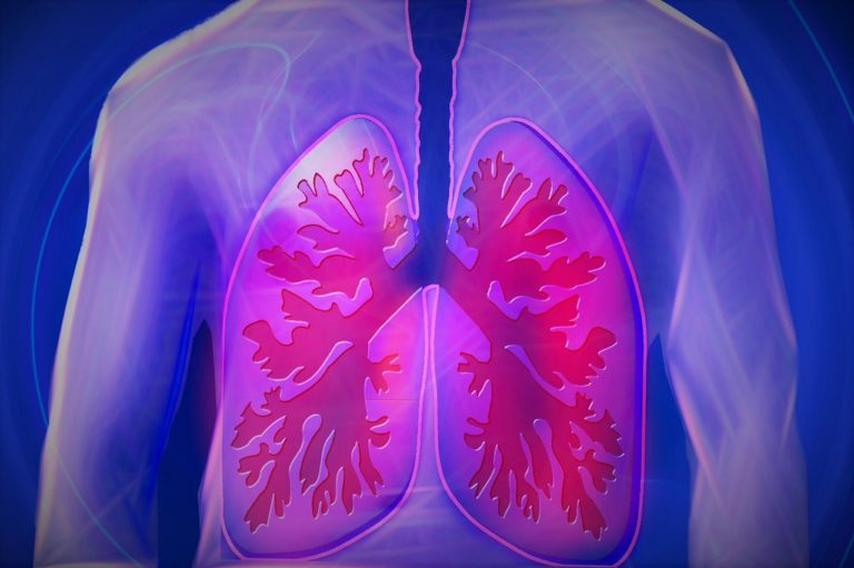 cannabis-derived CBD for treating the lung inflammation that accompanies COVID-19