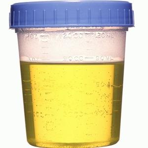 urine specimen